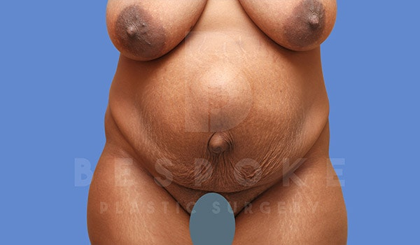 Tummy Tuck Gallery - Patient 4709960 - Image 1