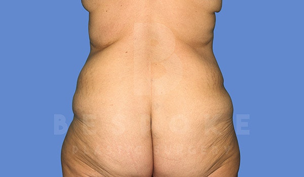 Tummy Tuck Gallery - Patient 4709958 - Image 7