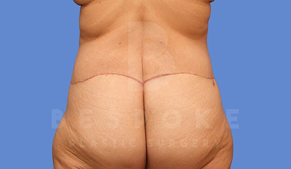 Tummy Tuck Gallery - Patient 4709958 - Image 8