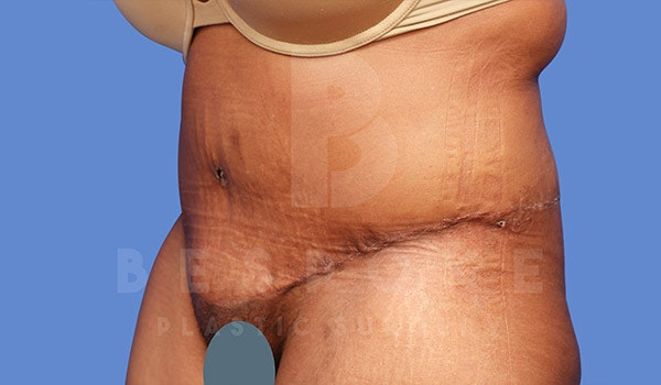 Tummy Tuck Gallery - Patient 4709960 - Image 4