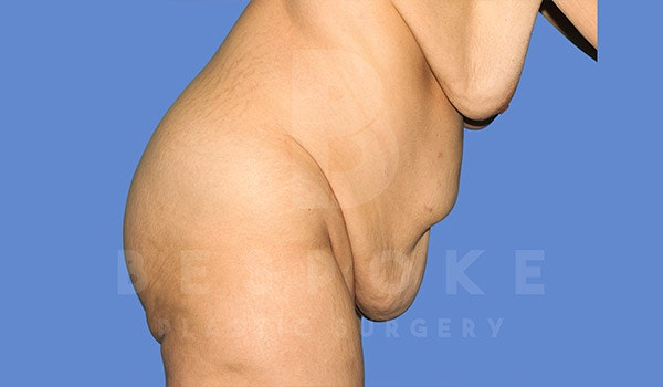 Tummy Tuck Gallery - Patient 4709958 - Image 9
