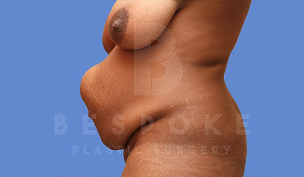 Tummy Tuck Gallery - Patient 4709960 - Image 5