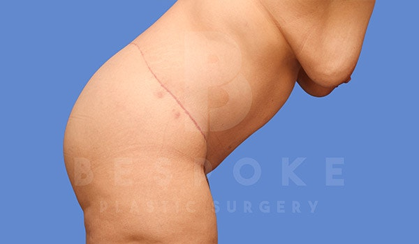 Tummy Tuck Gallery - Patient 4709958 - Image 10