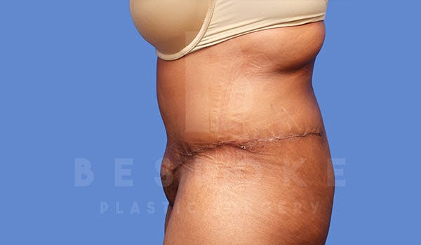 Tummy Tuck Gallery - Patient 4709960 - Image 6