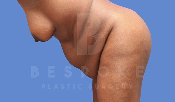 Tummy Tuck Gallery - Patient 4709961 - Image 5