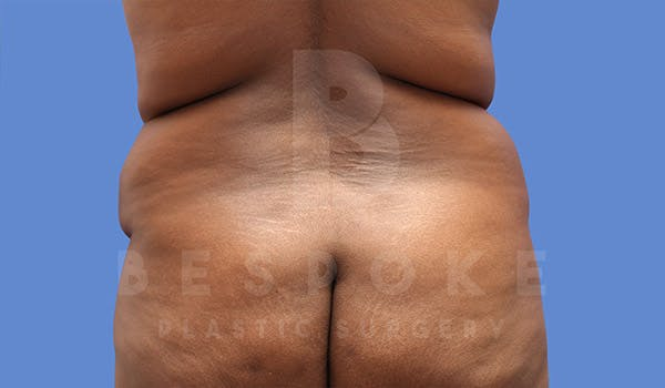 Tummy Tuck Gallery - Patient 4709961 - Image 7