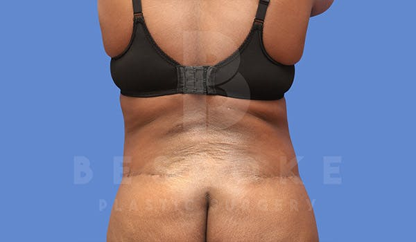 Tummy Tuck Gallery - Patient 4709961 - Image 8