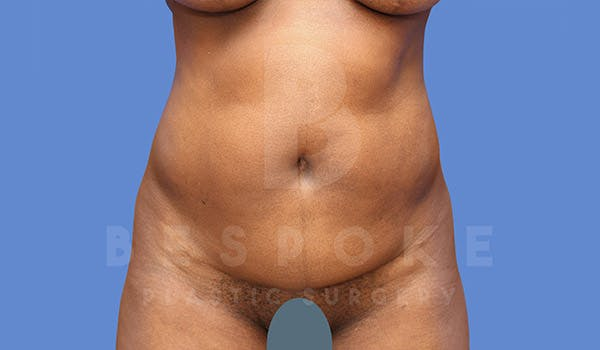 Liposuction Gallery - Patient 4709980 - Image 1