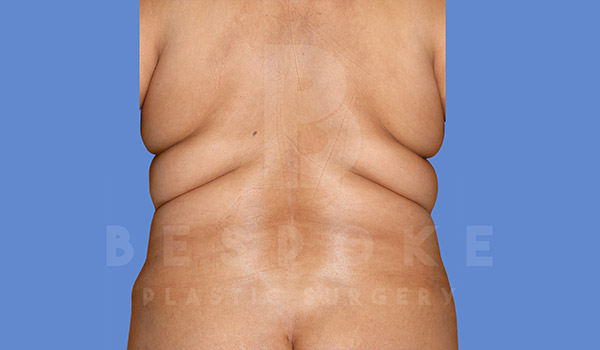 Liposuction Gallery - Patient 4709981 - Image 5