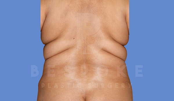 Liposuction Gallery - Patient 4709981 - Image 1