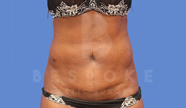 Liposuction Gallery - Patient 4709980 - Image 2