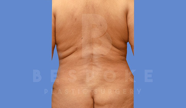 Liposuction Gallery - Patient 4709981 - Image 2