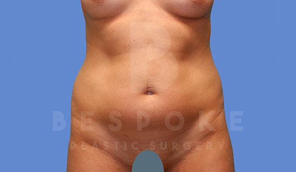 Liposuction Gallery - Patient 4709982 - Image 1