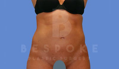 Liposuction Gallery - Patient 4709982 - Image 2