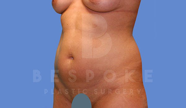 Liposuction Gallery - Patient 4709982 - Image 3