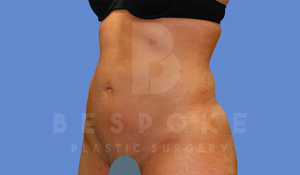 Liposuction Gallery - Patient 4709982 - Image 4