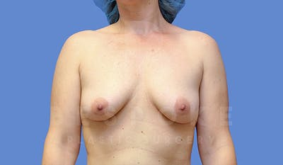 Mommy Makeover Gallery - Patient 4709992 - Image 1