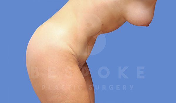 Mommy Makeover Gallery - Patient 4709992 - Image 8