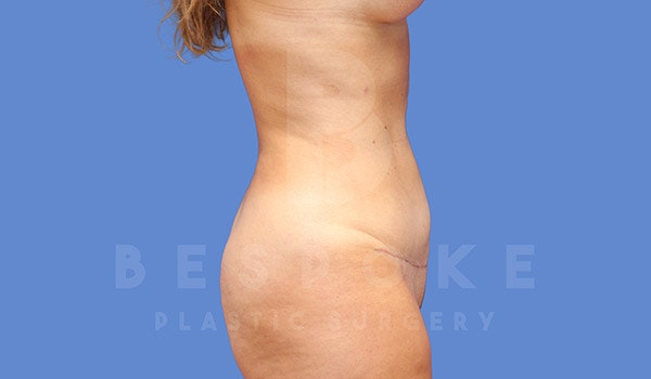 Mommy Makeover Gallery - Patient 4709992 - Image 10
