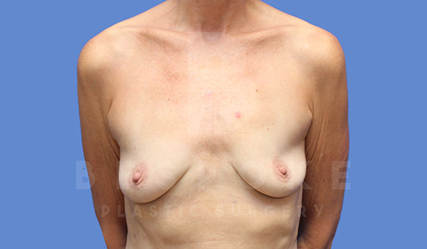 Breast Augmentation Gallery - Patient 4710013 - Image 11