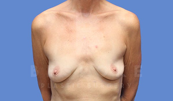 Breast Augmentation Gallery - Patient 4710013 - Image 1