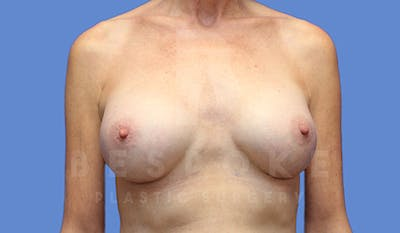 Breast Augmentation Gallery - Patient 4710013 - Image 2