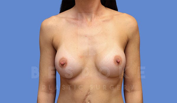 Breast Augmentation Gallery - Patient 4710014 - Image 2