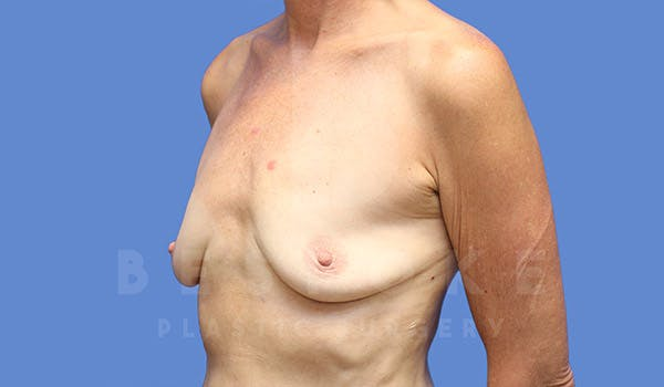 Breast Augmentation Gallery - Patient 4710013 - Image 3