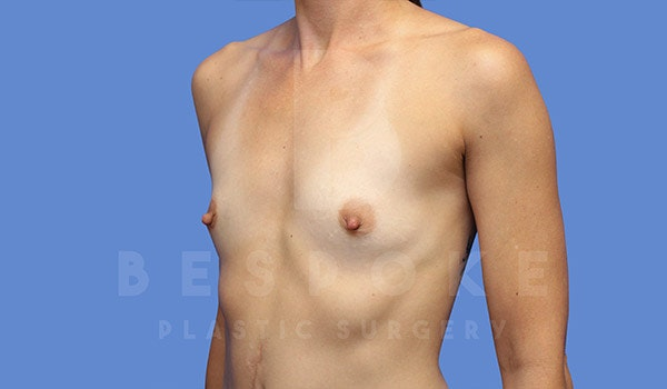 Breast Augmentation Gallery - Patient 4710014 - Image 3