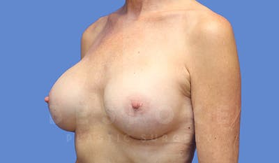 Breast Augmentation Gallery - Patient 4710013 - Image 4