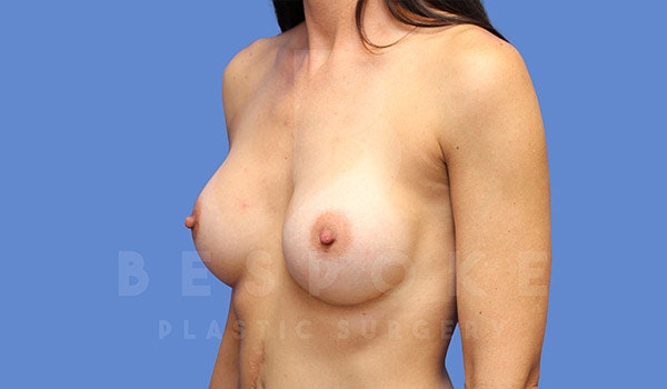 Breast Augmentation Gallery - Patient 4710014 - Image 4