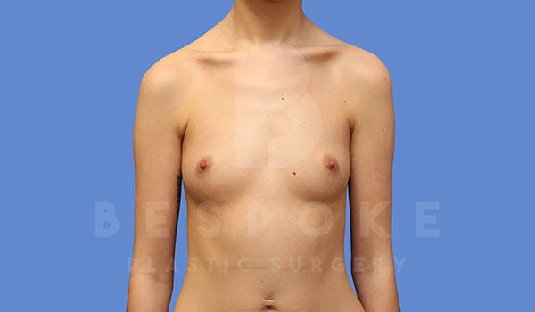 Breast Augmentation Gallery - Patient 4710015 - Image 1
