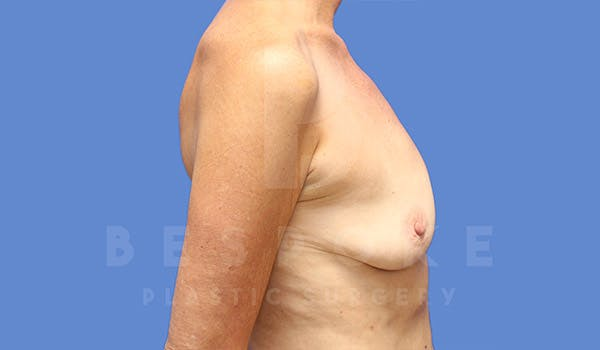 Breast Augmentation Gallery - Patient 4710013 - Image 5