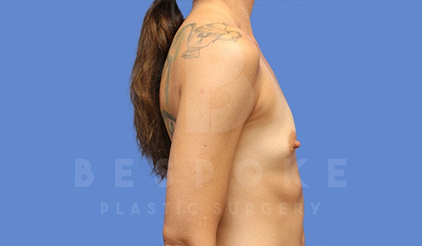Breast Augmentation Gallery - Patient 4710014 - Image 5