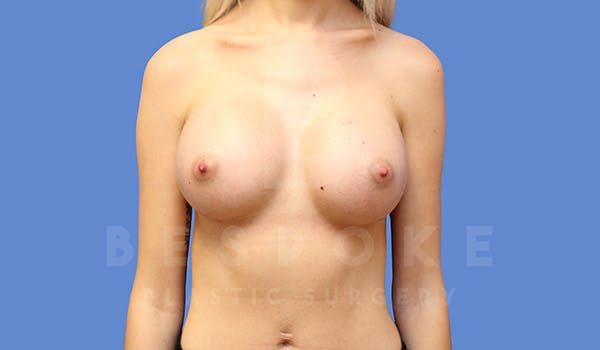 Breast Augmentation Gallery - Patient 4710015 - Image 2