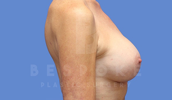 Breast Augmentation Gallery - Patient 4710013 - Image 6