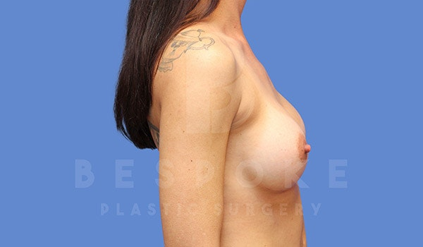Breast Augmentation Gallery - Patient 4710014 - Image 6