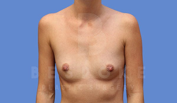 Breast Augmentation Gallery - Patient 4710016 - Image 1