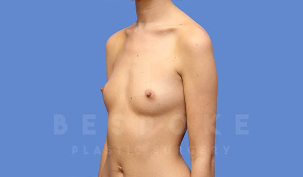 Breast Augmentation Gallery - Patient 4710015 - Image 3