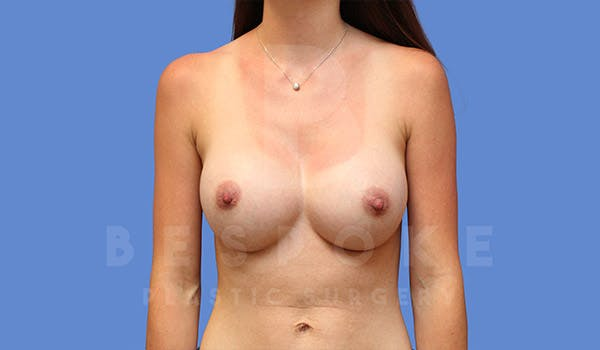 Breast Augmentation Gallery - Patient 4710016 - Image 2