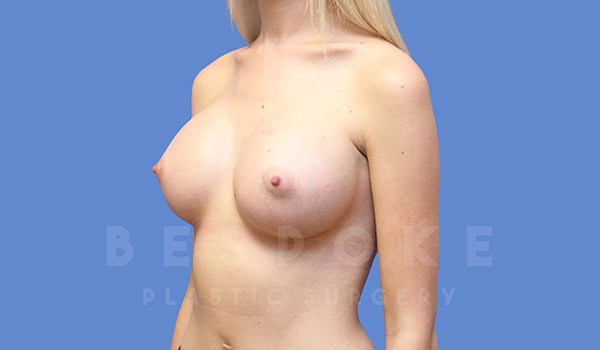 Breast Augmentation Gallery - Patient 4710015 - Image 4