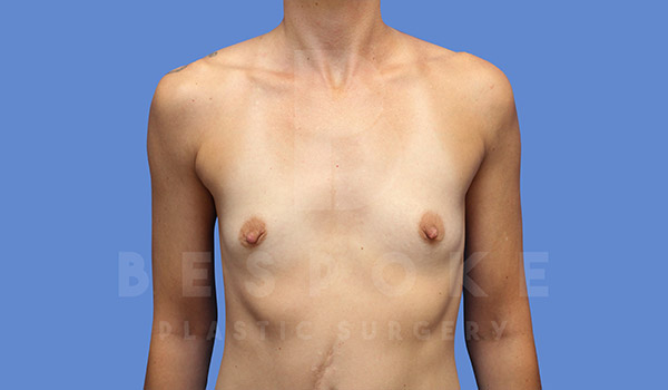 Breast Augmentation Gallery - Patient 4710014 - Image 12