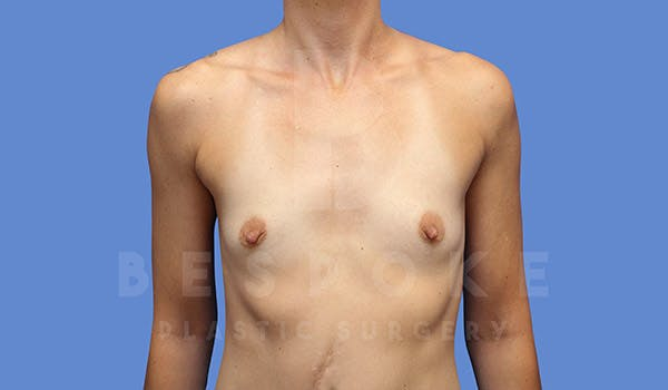 Breast Augmentation Gallery - Patient 4710014 - Image 1