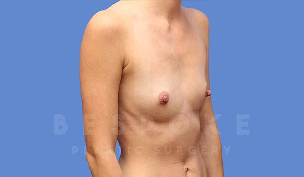 Breast Augmentation Gallery - Patient 4710016 - Image 3