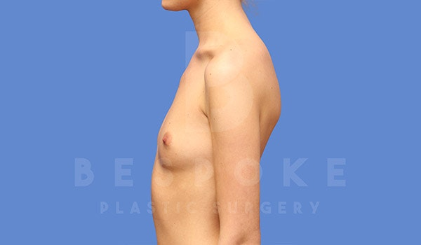 Breast Augmentation Gallery - Patient 4710015 - Image 5