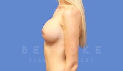 Breast Augmentation Gallery - Patient 4710015 - Image 6