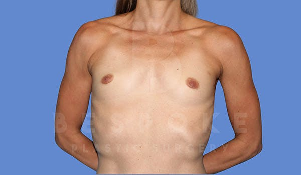 Breast Augmentation Gallery - Patient 4710017 - Image 1
