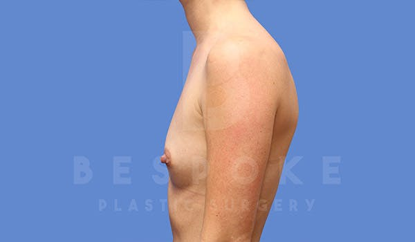 Breast Augmentation Gallery - Patient 4710016 - Image 5