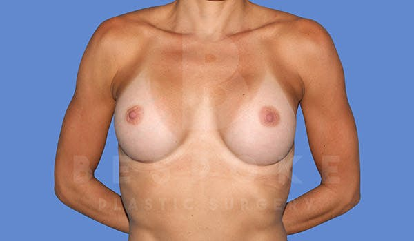 Breast Augmentation Gallery - Patient 4710017 - Image 2