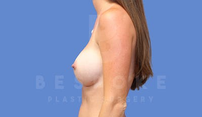 Breast Augmentation Gallery - Patient 4710016 - Image 6